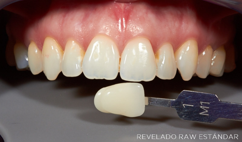 Dentadura 700D - revelado RAW estándar