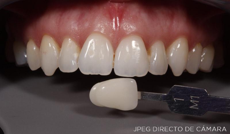 Foto dental 700D - Dentadura - JPG directo