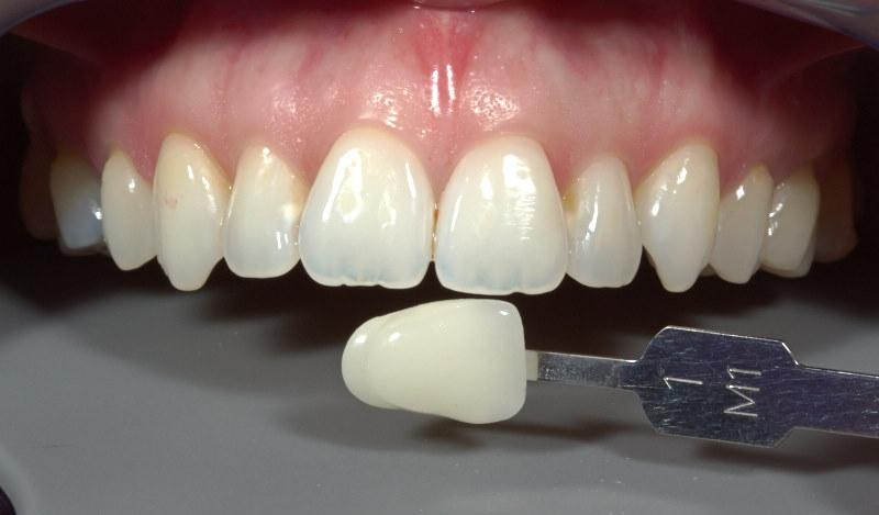 Fotografia de piezas y muestra dental